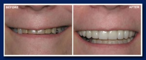 Example 1: You can see the extreme wear on these teeth in the before picture.