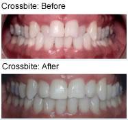 Crossbite - before & after
