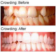 Crowding - before & after