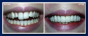 "This is what we call ""instant orthodontics""! Instead of 18 months of braces, we transformed this smile in only two appointments. This way they are straight and beautifully white also."