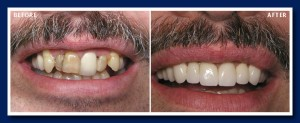 No teeth were removed here, and this was accomplished with a combination of laser gum contouring and bonded porcelain crowns. Do you think he smiles more now?