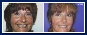 Another instant orthodontic example. Many people are just not willing to have braces, but would love a beautiful smile.