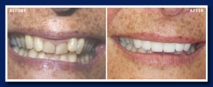 A close up reveals the amazing changes we can accomplish with modern restorative dentistry.
