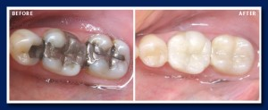 When the older fillings are small (the two teeth left and right) we can use the tooth coloured filling material. The middle tooth, required a porcelain crown.