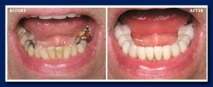 Here a combination of porcelain crowns and veneers were placed to correct the bite, and get a beautiful cosmetic result at the same time.