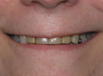You can see the extreme wear on these teeth in the before picture.