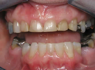 The missing lower teeth were replaced with bridges.