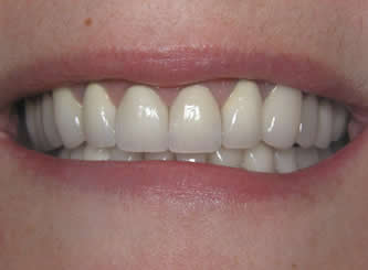 The colour of the teeth and the old dental work made it necessary to restore all the teeth.