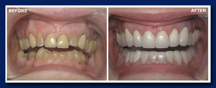 Full Mouth Reconstruction With Dental Implants Vancouver