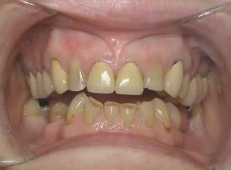 Implants were used to replace the lower missing teeth and crowns to build up all the worn teeth.