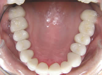 A close up of the upper teeth. The previous metal containing crowns and bridges were replaced with metal free, and the colour was lightened to what our patient wanted.