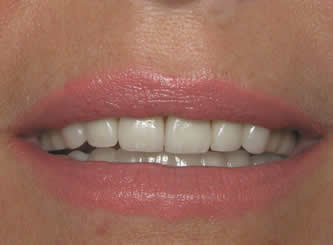 Another example of extreme wear, showing how restoring the teeth gives a much more youthful appearance.