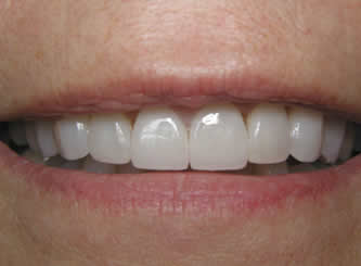 Many people think that the only way to straighten teeth is to have orthodontics, but there is another option. 8 porcelain veneers can make the teeth look beautful and change the colour at the same time.