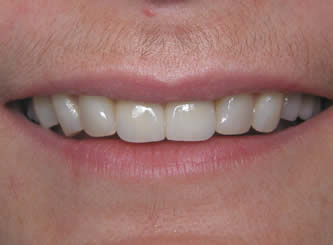 This lady's front teeth were sticking out much more that in appears. She did not want to take the time for orthodontics, so we placed 8 porcelain crowns.