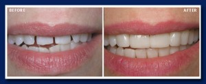 In this case, veneers were made and bonded onto the natural teeth.
