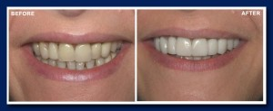 Here we bonded veneers right over the top of the existing crowns to give a much nicer smile