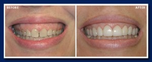 Another example of a combination of gum recontouring and lumineers (no-preparation veneers)