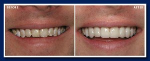 Discoloured and mottled teeth can often be improved with veneers