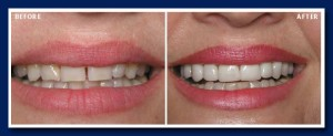 In many cases, you don't need to file down teeth to place beautiful veneers.