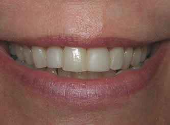 Bleaching alone would not have been able to get the teeth this white, but veneers can - and the change is permanent.