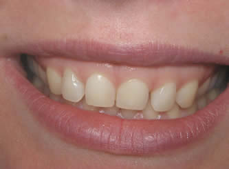 Gum reshaping and veneers were used to improve her smile.