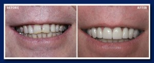 Porcelain veneers on the upper teeth, longer and whiter, take years off his appearance.