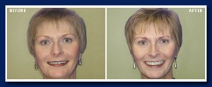 This lady was suffering from chronic facial pain, jaw pain and headaches. Previous dental treatment was unsuccessfull, but our experience in neuromuscular dentistry was able to eliminate her pain.