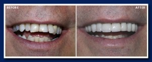 A combination of laser bonded porcelain crowns and veneers were used to make this change in only two appointments!