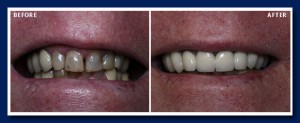 Porcelain crowns, joined together, stabilized the front teeth. The nice white colour is also a huge improvement.