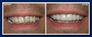 Two Appointments, porcelain veneers and crowns change an old looking smile to a much more youthful one.