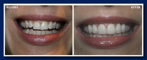Porcelain veneers and gum recontouring turn this good smile into a great one.