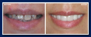 One of our most dramatic changes! This is life changing dentistry and we love being able to do this.
