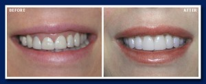 Laser gum recontouring, replacing old crowns with bonded porcelain crowns and veneers gives an amazing change.