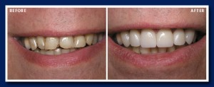 Worn teeth make someone look much older than they really are. Porcelain veneers which are much easier than plastic surgery!