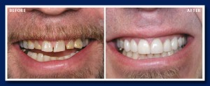 Porcelain veneers and two appointments later, a new bright, white, perfect smile totally transform this smile.
