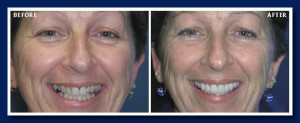 Many old porcelain to metal crowns have the dark line along the gums. Getting rid of the silver/mercury fillings also brightens the whole smile.
