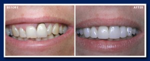 Laser gum reshaping, porcelain veneers were used here. Yes! That is a diamond she wanted in that tooth!