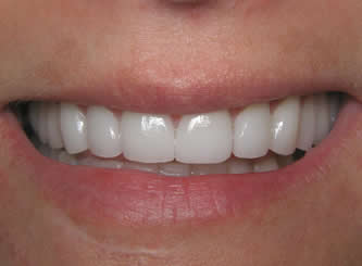Teeth grinding at night is very common and can result in severe damage to teeth. Here we placed porcelain crowns and veneers to restore her smile.