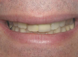 Another example where older yellow crowns were replaced with more natural looking all porcelain crowns.