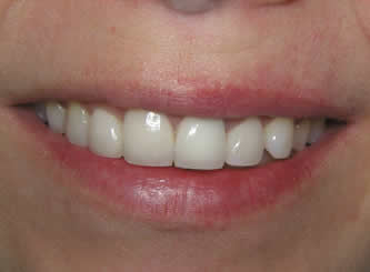 Four front teeth had porcelain placed to lengthen, change colour and get rid of the old bonding on the front tooth.