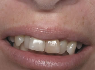 An example of what we call instant orthodontics. This can be accomplished in as little as two weeks, usually without extracting any teeth!
