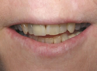 Porcelain crowns can make these dark crooked teeth look perfect.