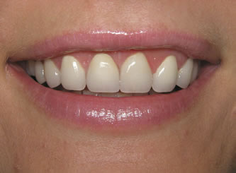 The extreme damage to these teeth from tooth grinding was repaired with very strong all porcelain crowns.