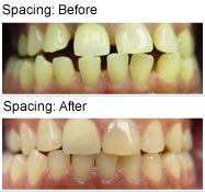 Spacing - before & after
