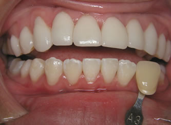 The top teeth are porcelain and do not change colour, the bottom teeth are much lighter after bleaching.