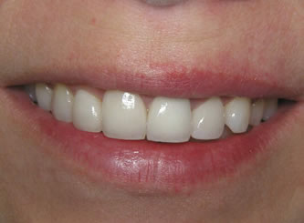 This is a combination bleaching and veneer result. Four front teeth were veneered and the rest have been whitened.