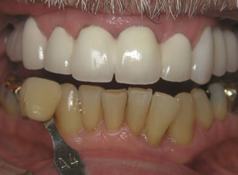 Another example where only the lowers were whitened, the contrast before and after against the upper teeth shows the amount of whitening obtained.