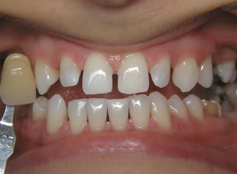 Deep Bleaching method has given us the best results in 20 years of bleaching teeth.